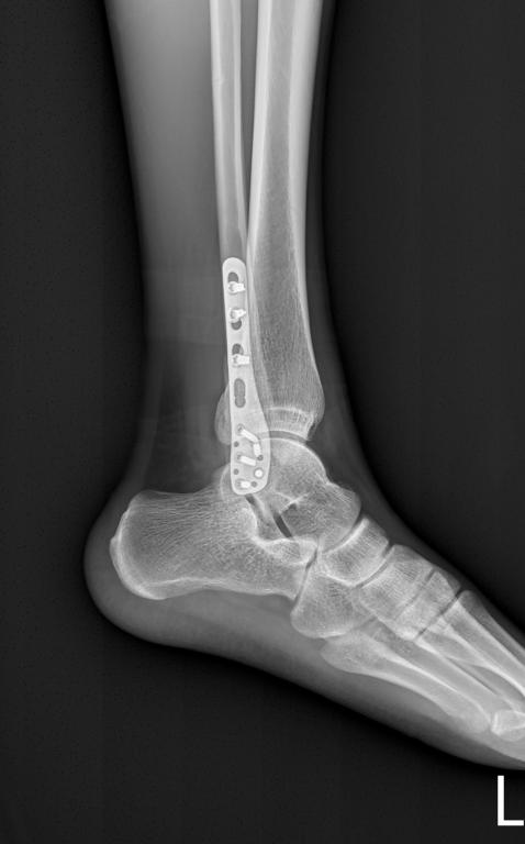腓骨骨折術後X光