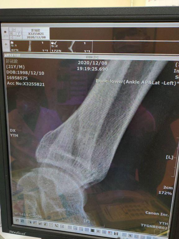 腓骨骨折X光